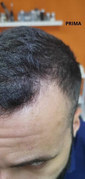 Marco_esempio_trattamento_alopecia_maschile_PRIMA (1)