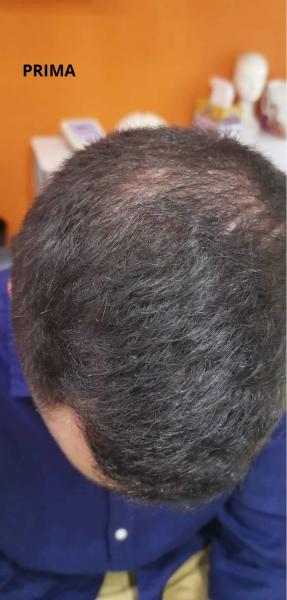 Marco_esempio_trattamento_alopecia_maschile_PRIMA (2)